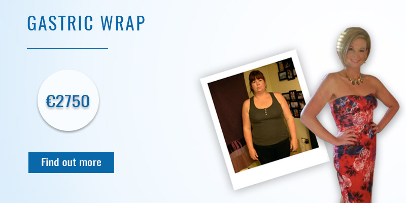 Gastric Wrap - New Leaf Weight Loss Surgery Abroad